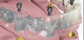 Le bridge d'usage à 10 ans implanto-porté réalisé dans la journée permettant la perte éventuelle d'implants