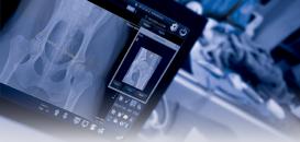 Comment optimiser mes radiographies osseuses numériques?